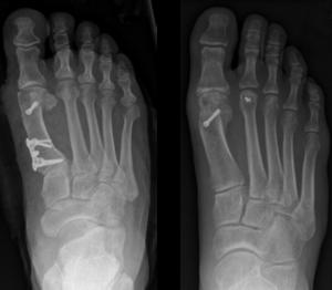 Hallux valgus OP Spezialist distale Chevron-Osteotomie