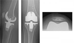 Knieprothese mit Kniescheibenrückflächenersatz Stuttgart