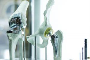 Orthopäde Stuttgart Endoprothetik