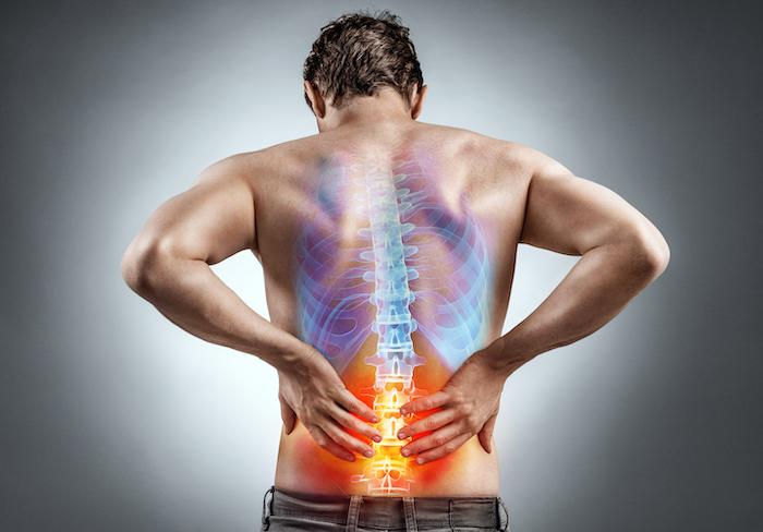 Orthopäde Stuttgart Rückenschmerzen Bandscheibenvorfall