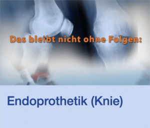 Video Endoprothetik Knie Stuttgart