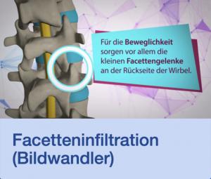 Video Facetteninfiltration Bildwandler Stuttgart