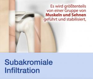 Video Subakromiale Infiltration Stuttgart